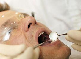 Hva er årsakene til betennelse i tannkjøttet og influensa?