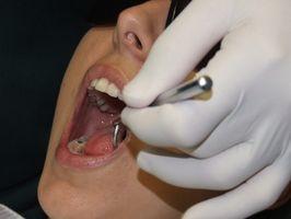 Hvordan å behandle tørr munn med xylitol