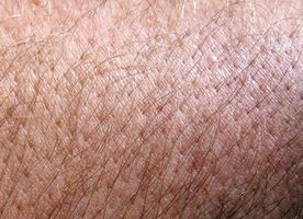 Pemfigus vulgaris Skin Disease