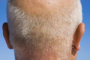 Hårsekkene og hodebunnen infeksjoner