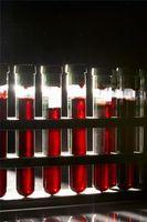 Hvordan bruke blodprøver for å oppdage Bulimi