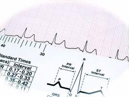 Hva er en Cardiology tekniker?