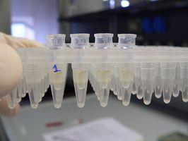 Hvor lang er hepatitt C-virus Infeksiøs Utenfor Body?