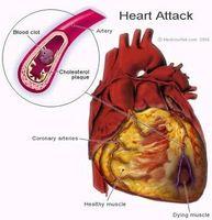 Hjerte Blokkering Symptomer