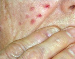 Hvordan behandle Rosacea Acne