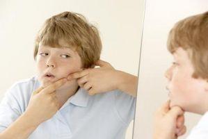 Laser og lys behandlinger for akne arr