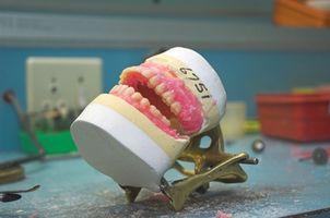 Hva er en Marius Bridge Dental?