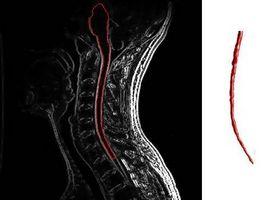 Definisjon av Muscular sklerose