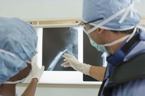 Hvordan oppdage problemer på en X-Ray
