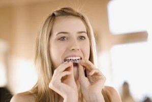 Hvordan Hold Åpne en Mouth å bleke tennene