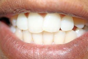 Slik gjenoppretter mineraler for å myke flekker å hjelpe tann Slite