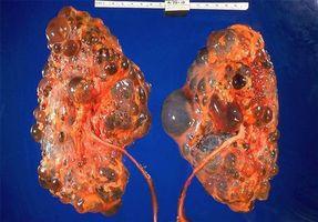 Polycystisk nyre sykdommer