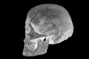 Hva er farene ved hodeskader?