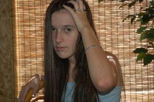 Marfans syndrom med hvite luggen av Hair