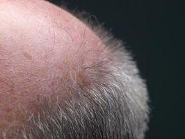 Hvorfor kan ikke hår vokser ut igjen på Scar Tissue?