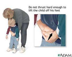 Hvordan Gi Heimlich til et barn