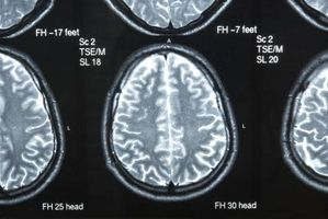Tegn og symptomer på nevrologisk utfall