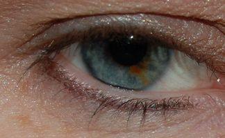 Hvordan å rydde opp øye floaters