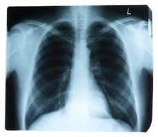 Hva er metning av KOLS på Oxygen?