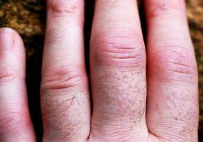 Fordøyelsesenzymer for Arthritis Relief