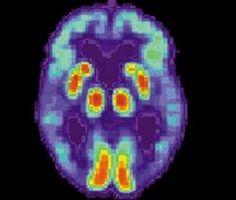 Mental Helse Fordeler med Vitamin D