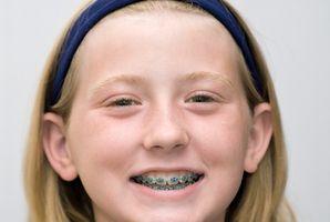 Hva er farene ved tannregulering?