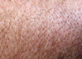 Kortisolnivå og kløende hud