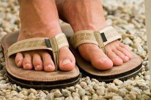Inngrodd tånegl Behandlinger