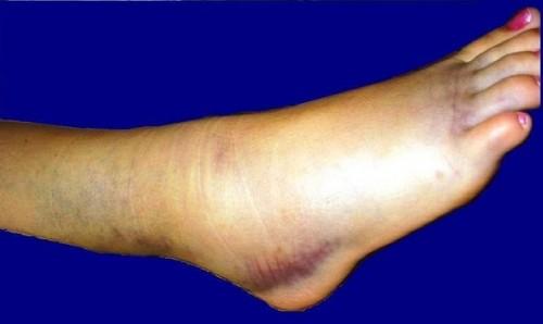 Ankel ligament smerter