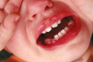 Hvordan Husk primære tenner utbrudd ganger