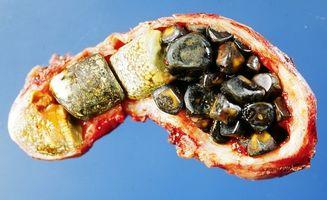 Typer av gallestein