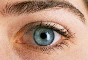Eye Følsomhet grunn av helvetesild i ansiktet