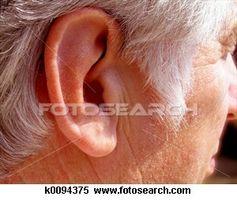 Rynkete øreflippene og hjertesykdom