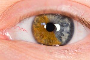 Farget Kontakter og øye problemer