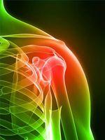 Kalsium Innskudds Symptomer