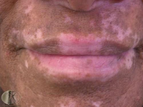 Hva er en hud Fade?