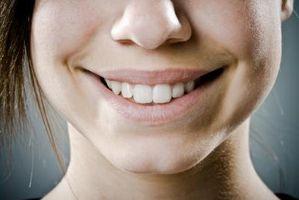 Slik fjerner Hvite prikker på tennene