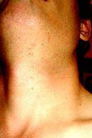 Pseudofolliculitis barbae Cures