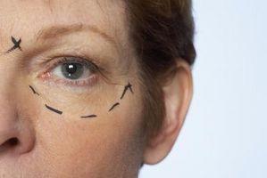 Ulempene ved en ansiktsløftning