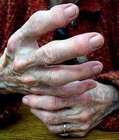 Hvordan kontrollere leddgikt smerte med mat