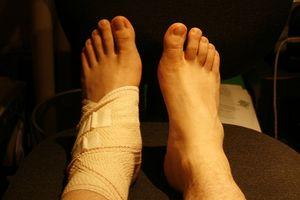 forstuet håndledd symptomer
