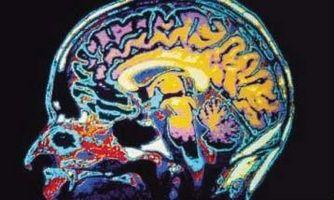 Virkningene av PTSD-relaterte minne tap