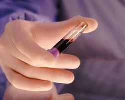 Hva gjør en Blood Metabolsk Panel & Lipid Panel test for?