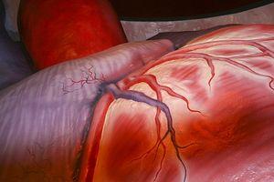 Fakta om medfødt hjertesykdom
