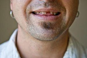 Hvordan dekke mangler tenner i munnen