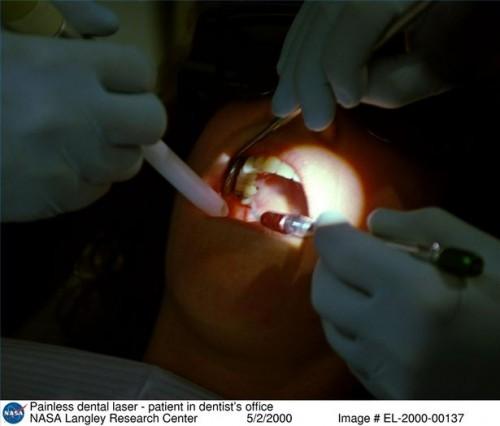 Dental Utvinnings Komplikasjoner
