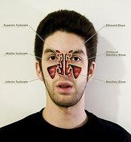 Slik unngår du at Fungal Sinus infeksjoner