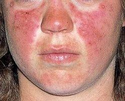 Lupus utslett ansikt