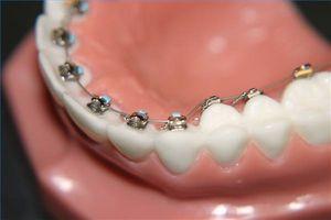 Historien om tannregulering bak tenner