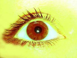 mørk flekk på det hvite i øyet